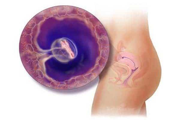 Địa chỉ điều trị uy tín bệnh viêm cổ tử cung